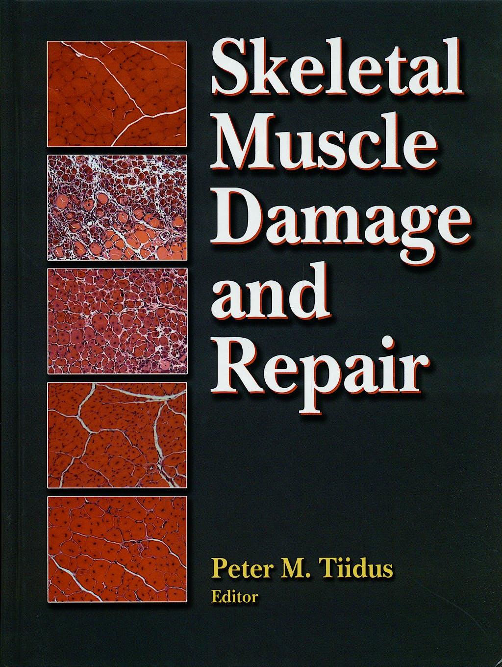 Portada del libro 9780736058674 Skeletal Muscle Damage and Repair
