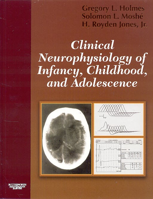 Portada del libro 9780750672511 Clinical Neurophysiology of Infancy, Childhood and Adolescence