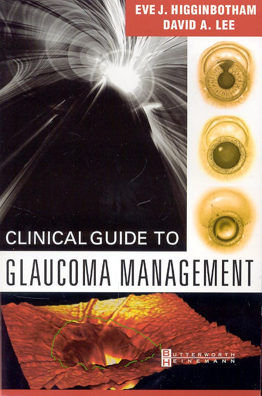 Portada del libro 9780750673105 Clinical Guide to Glaucoma Management