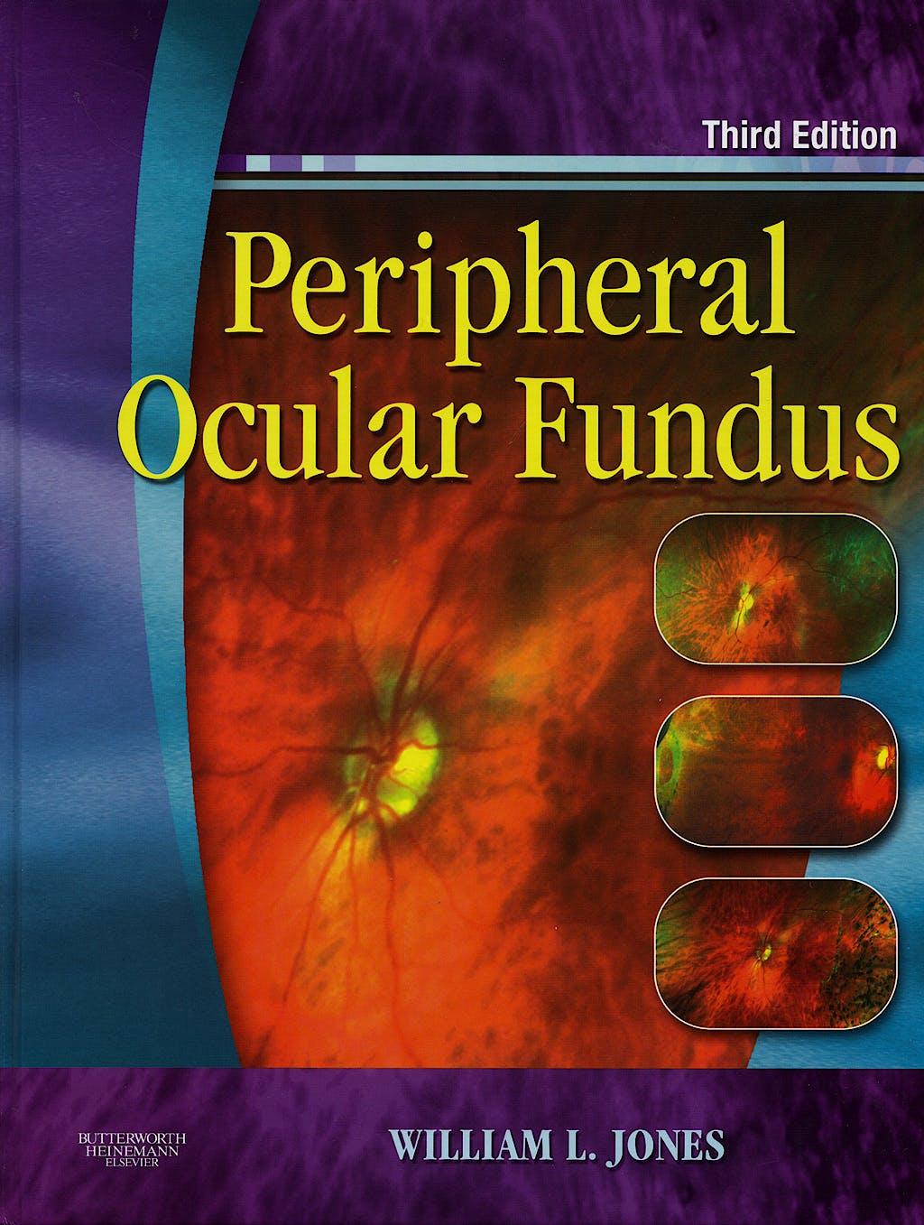 Portada del libro 9780750675055 Peripheral Ocular Fundus