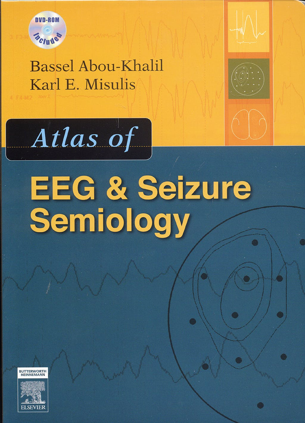 Portada del libro 9780750675130 Atlas of EEG and Seizure Semiology