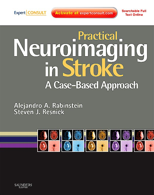 Portada del libro 9780750675376 Practical Neuroimaging in Stroke. a Case-Based Approach (Online and Print)