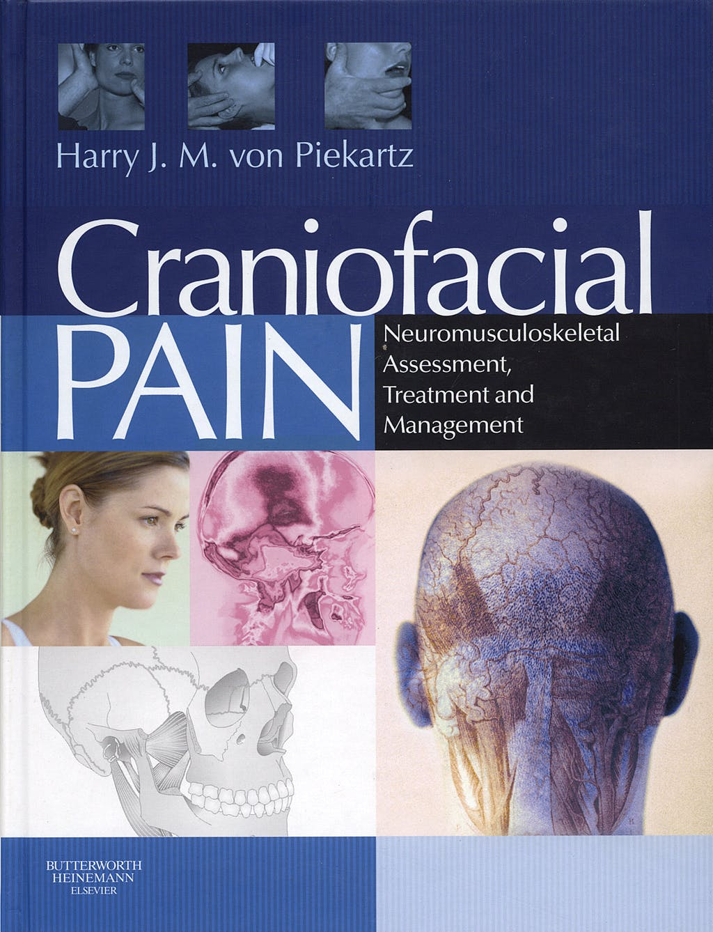 Portada del libro 9780750687744 Craniofacial Pain. Neuromusculoskeletal Assessment, Treatment and Management