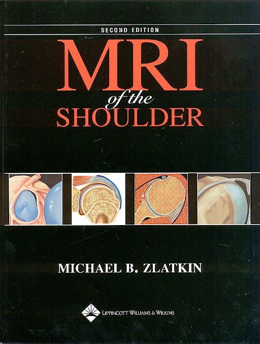 Portada del libro 9780781715904 Mri of the Shoulder