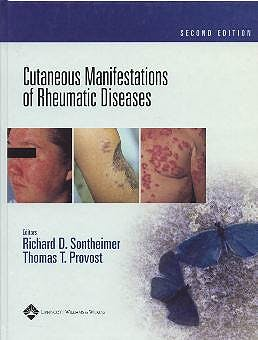 Portada del libro 9780781734783 Cutaneous Manifestations of Rheumatic Diseases