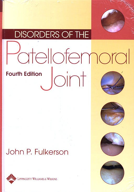 Portada del libro 9780781740814 Disorders of the Patellofemoral Joint