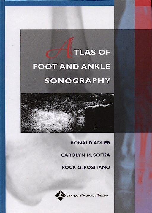 Portada del libro 9780781747691 Atlas of Foot and Ankle Sonography