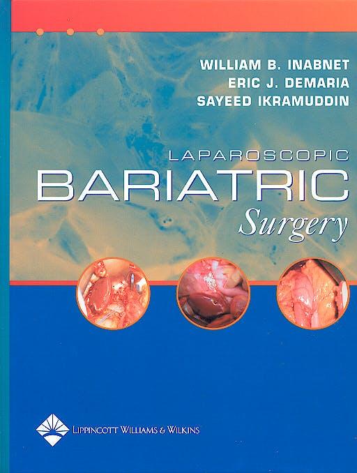 Portada del libro 9780781748742 Laparoscopic Bariatric Surgery