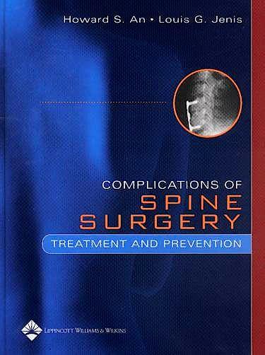 Portada del libro 9780781757911 Complications of Spine Surgery