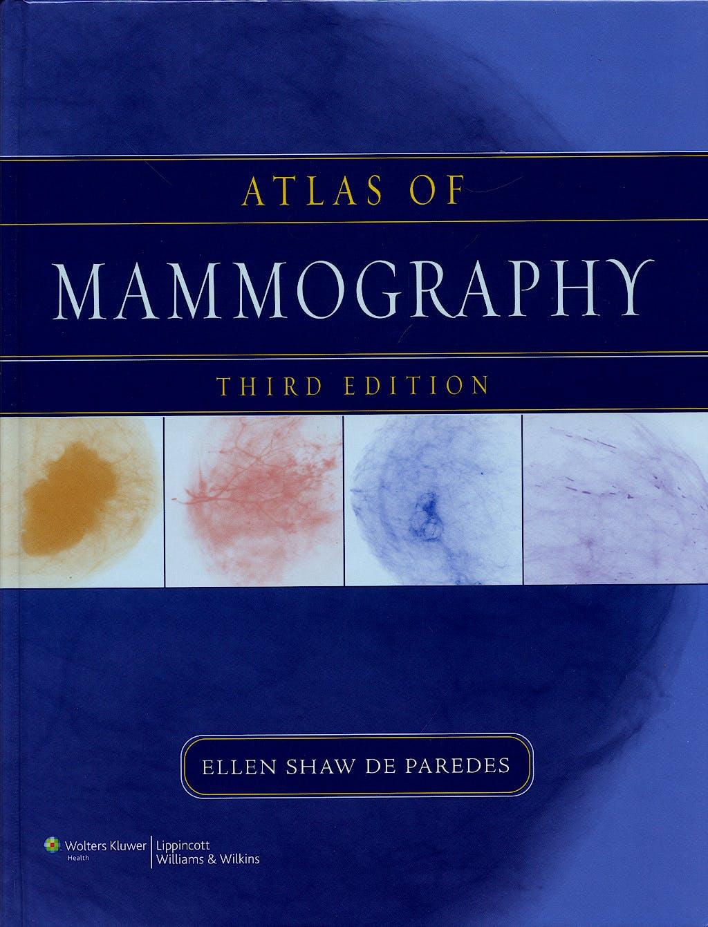 Portada del libro 9780781764339 Atlas of Mammography
