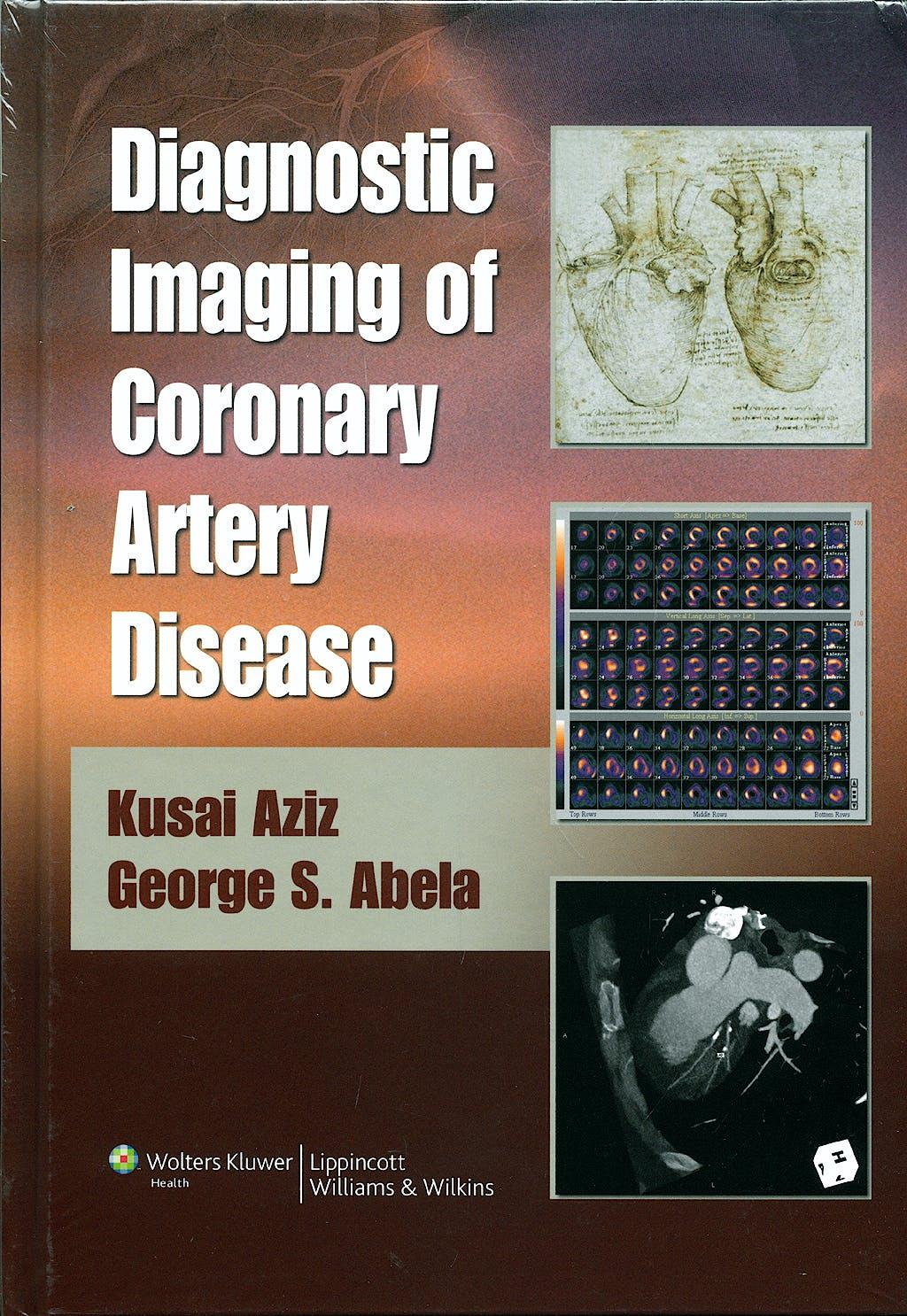 Portada del libro 9780781766029 Diagnostic Imaging of Coronary Artery Disease