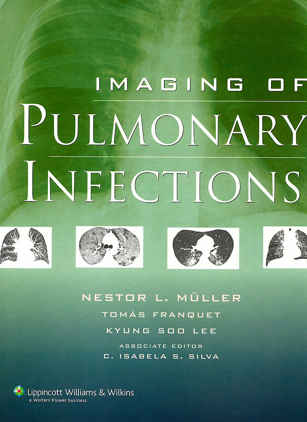 Portada del libro 9780781772327 Imaging of Pulmonary Infections
