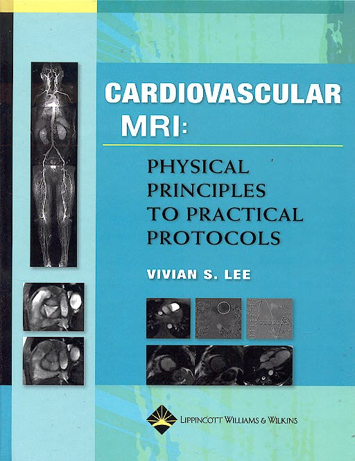 Portada del libro 9780781779968 Cardiovascular Mri: Physical Principles to Practical Protocols