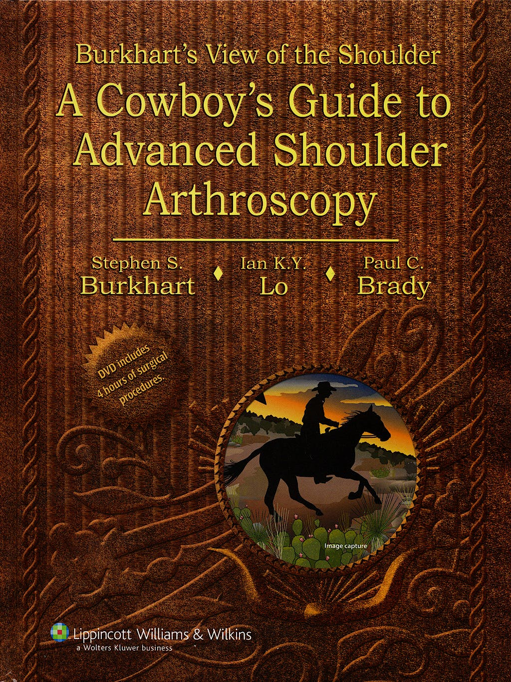 Portada del libro 9780781780001 Burkhart's View of the Shoulder. a Cowboy's Guide to Advanced Shoulder Arthroscopy