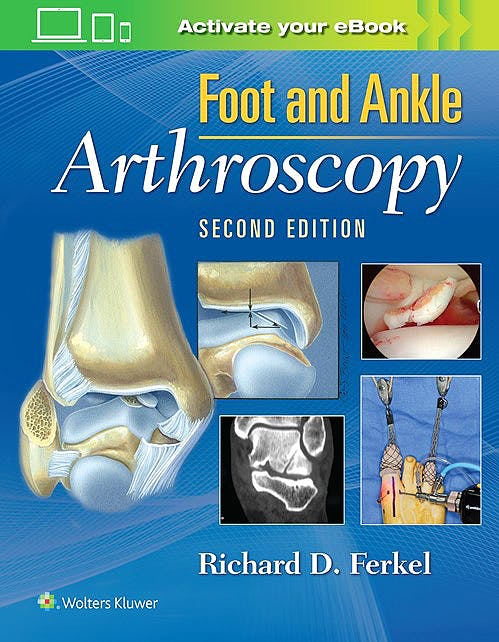 Portada del libro 9780781783415 Foot and Ankle Arthroscopy