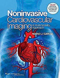 Portada del libro 9780781795357 Noninvasive Cardiovascular Imaging. a Multimodality Approach