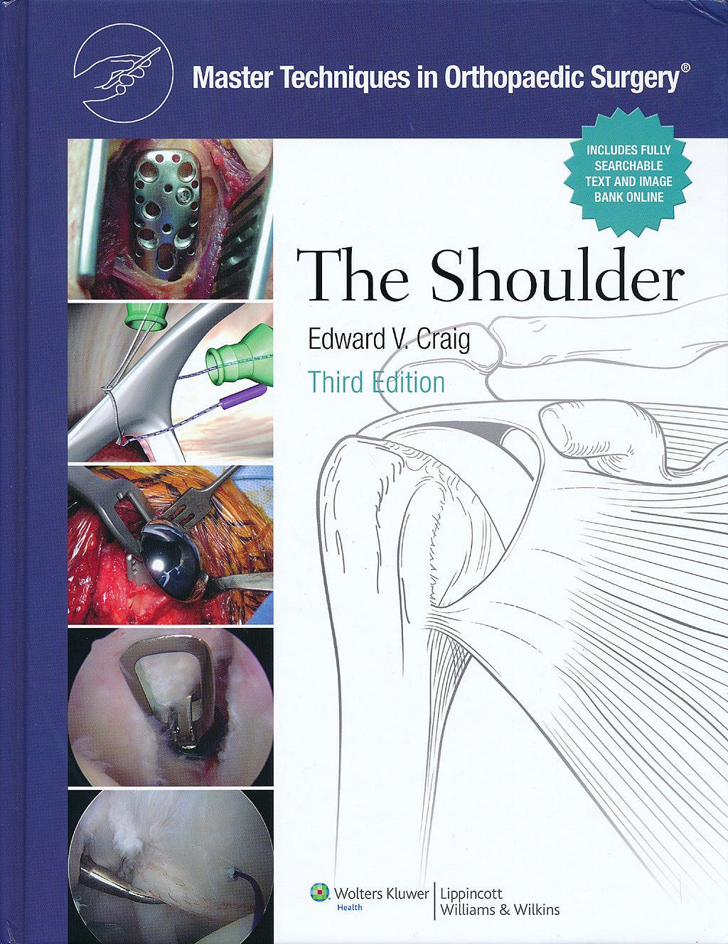 Portada del libro 9780781797481 Master Techniques in Orthopaedic Surgery. The Shoulder (Print and Online)