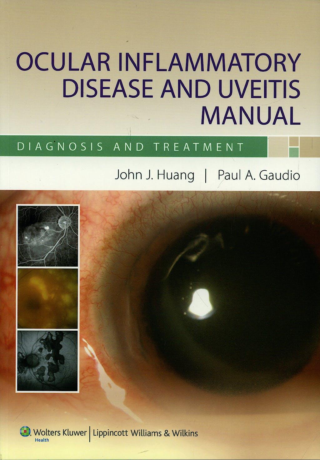 Portada del libro 9780781798365 Ocular Inflammatory Disease and Uveitis Manual. Diagnosis and Treatment