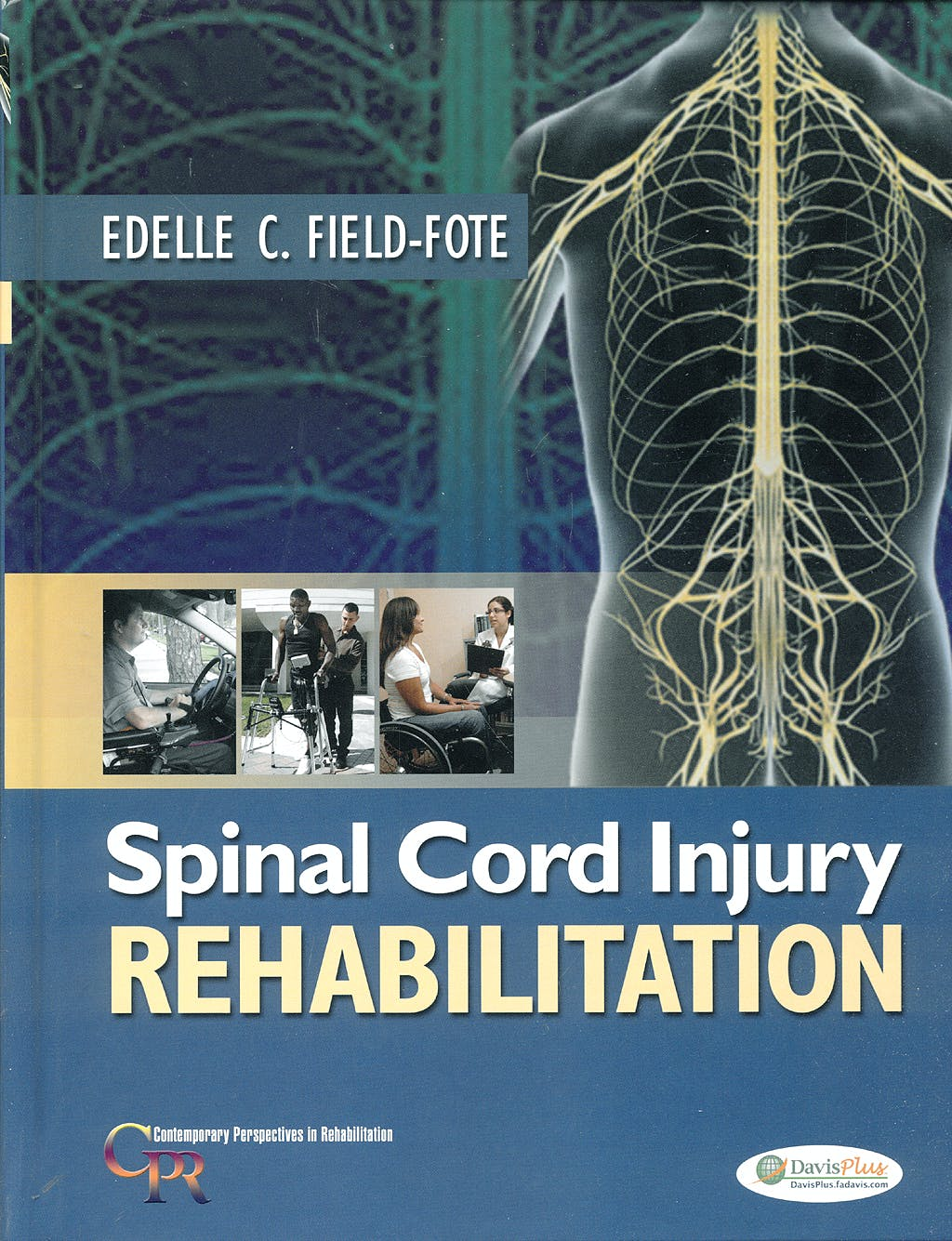 Portada del libro 9780803617179 Spinal Cord Injury Rehabilitation
