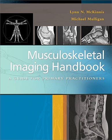 Portada del libro 9780803639171 Musculoskeletal Imaging Handbook. a Guide for Primary Practitioners