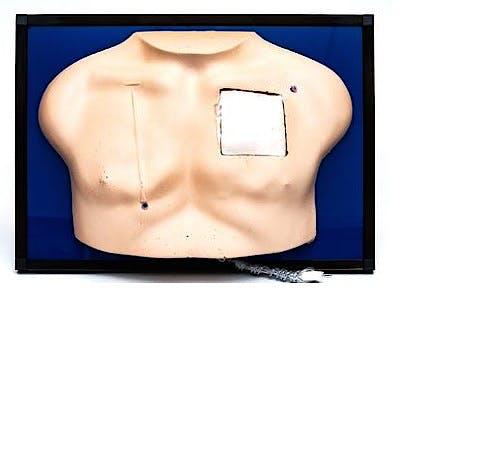 Simulador de Cateter Implantado