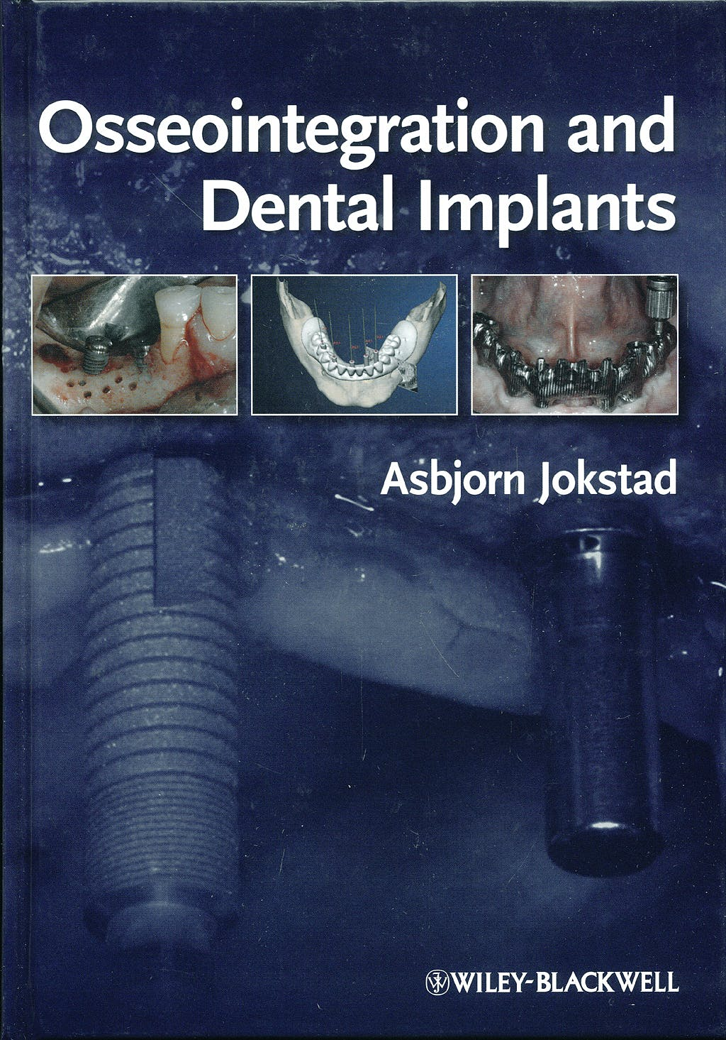 Portada del libro 9780813813417 Osseointegration and Dental Implants