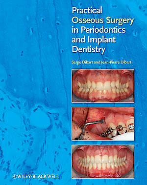 Portada del libro 9780813818122 Practical Osseous Surgery in Periodontics and Implant Dentistry