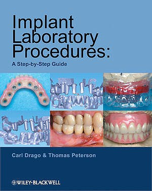Portada del libro 9780813823010 Implant Laboratory Procedures: A Step-by-Step Guide