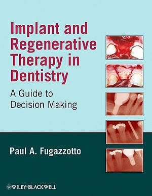 Portada del libro 9780813829623 Implant and Regenerative Therapy in Dentistry. a Guide to Decision Making