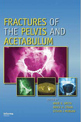 Portada del libro 9780824728465 Fractures of the Pelvis and Acetabulum