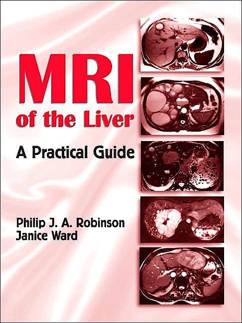 Portada del libro 9780824728717 Mri of the Liver. a Practical Guide