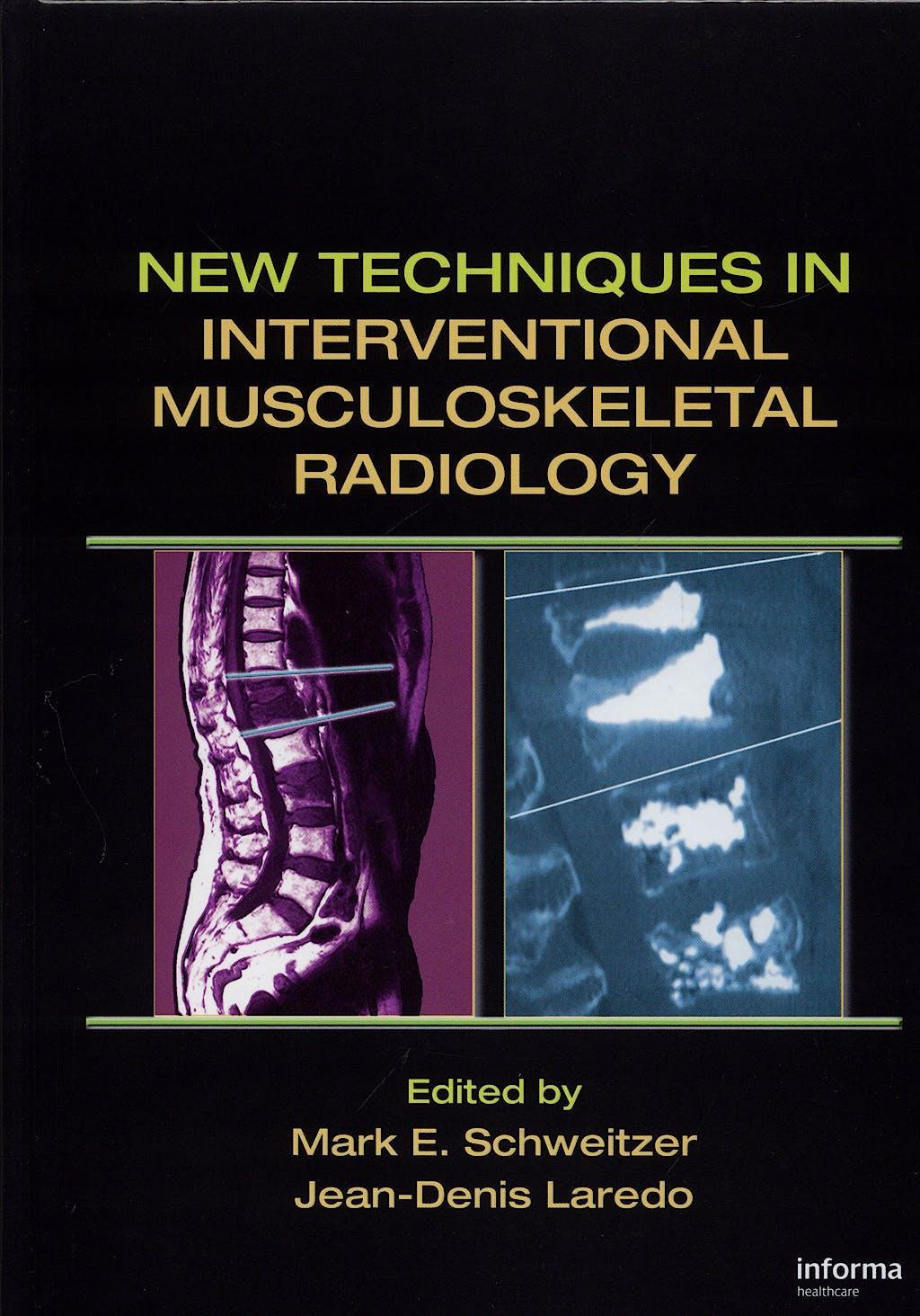 Portada del libro 9780824754457 New Techniques in Interventional Musculoskeletal Radiology
