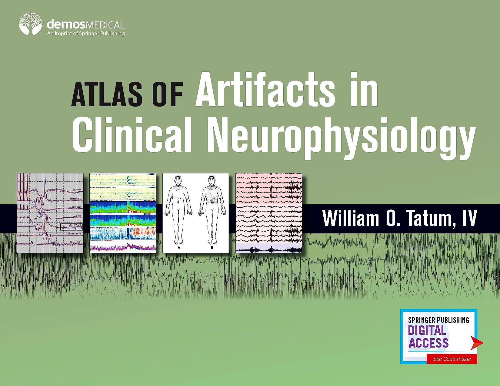 Portada del libro 9780826169341 Atlas of Artifacts in Clinical Neurophysiology