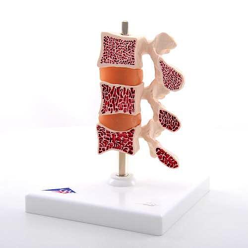 Modelo de Osteoporosis, 3 Vertebras