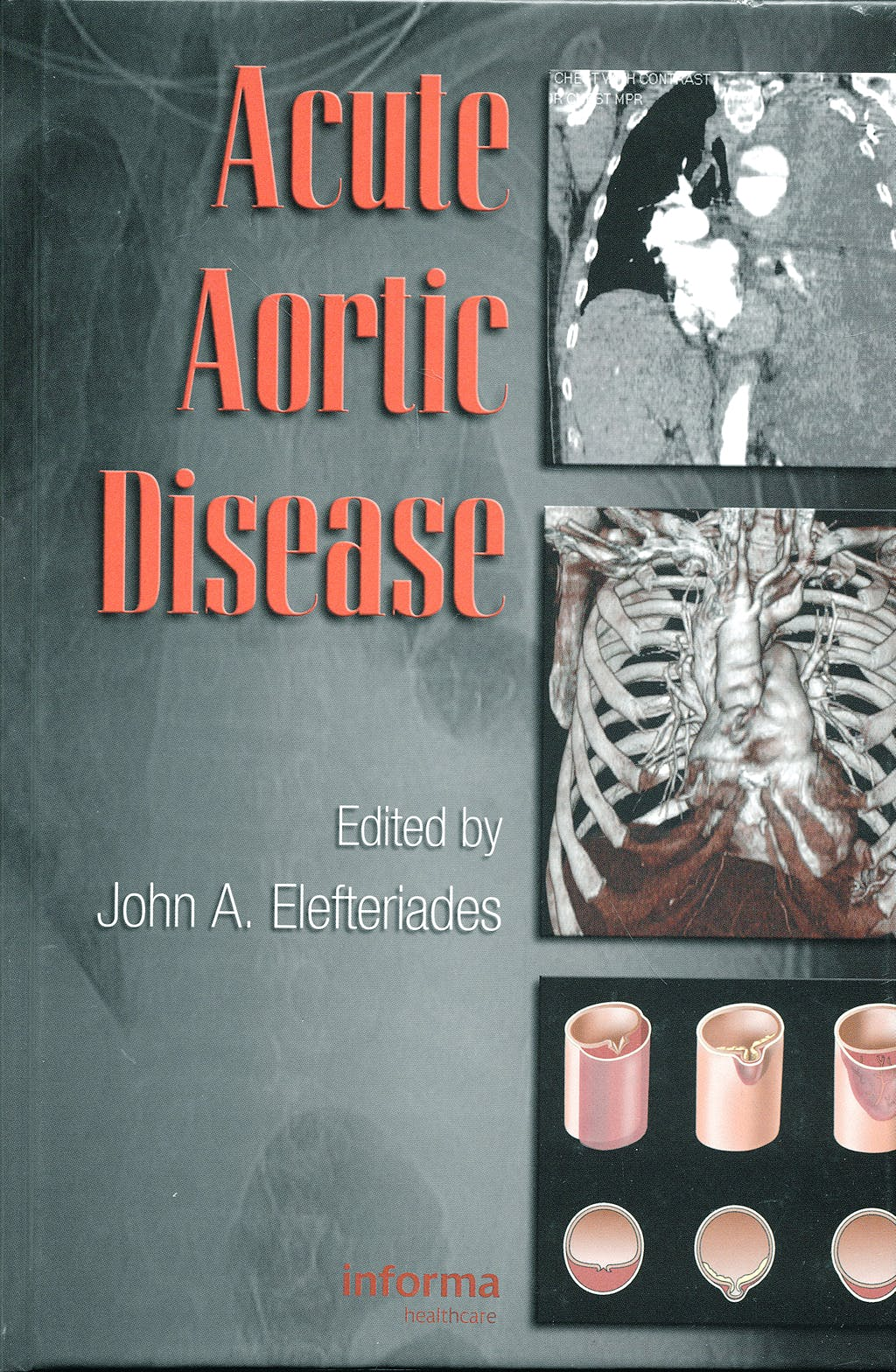 Portada del libro 9780849370236 Acute Aortic Disease (Series: Fundamental and Clinical Cardiology, Volume 61)