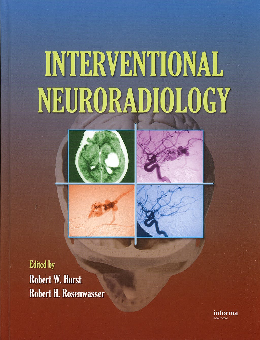 Portada del libro 9780849395628 Interventional Neuroradiology