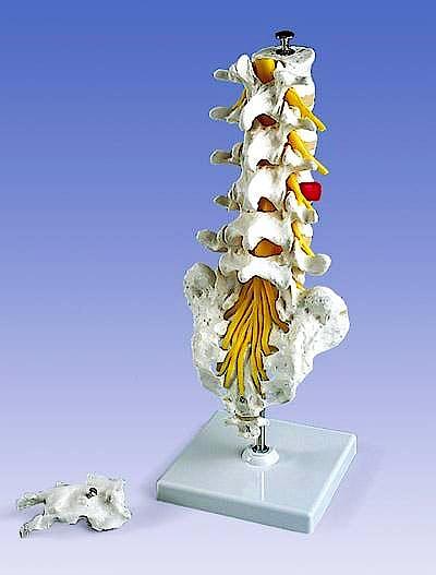 Columna Lumbar + Hernia de Disco Dorsolateral