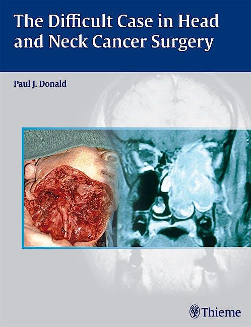 Portada del libro 9780865779846 The Difficult Case in Head and Neck Cancer Surgery