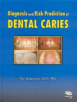 Portada del libro 9780867153620 Diagnosis and Risk Prediction of Dental Caries