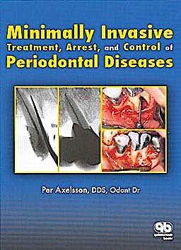 Portada del libro 9780867153651 Minimally Invasive Treatment, Arrest, and Control of Periodontal Diseases