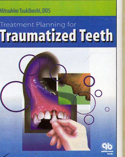Portada del libro 9780867153743 Treatment Planning for Traumatized Teeth