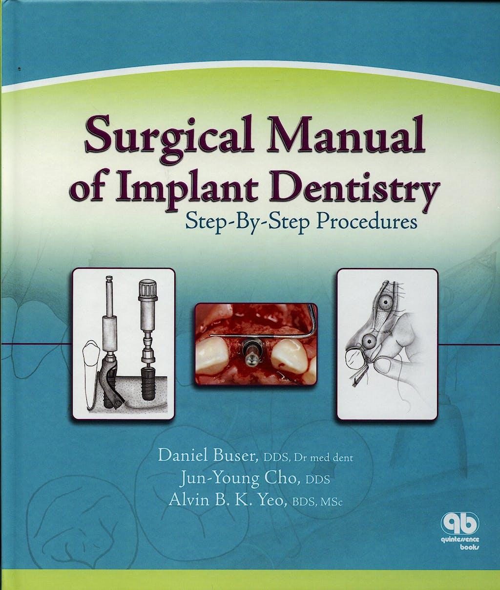 Portada del libro 9780867153798 Surgical Manual of Implant Dentistry