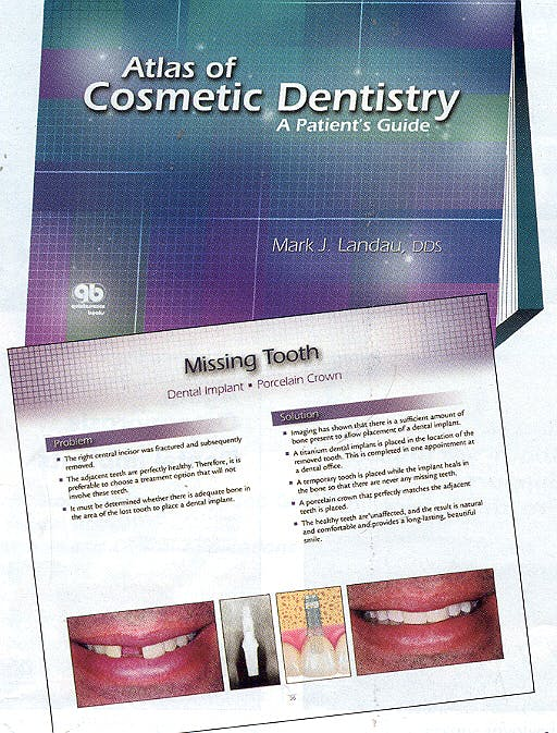 Portada del libro 9780867154283 Atlas of Cosmetic Dentistry