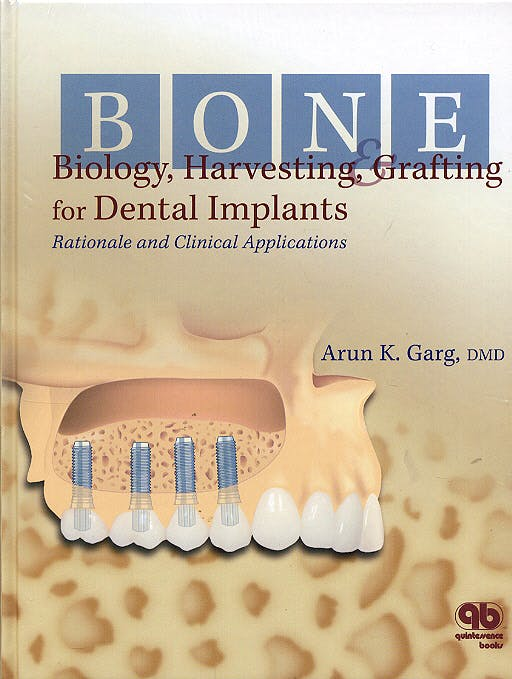 Portada del libro 9780867154412 Bone Biology, Harvesting, and Grafting in Dental Implants