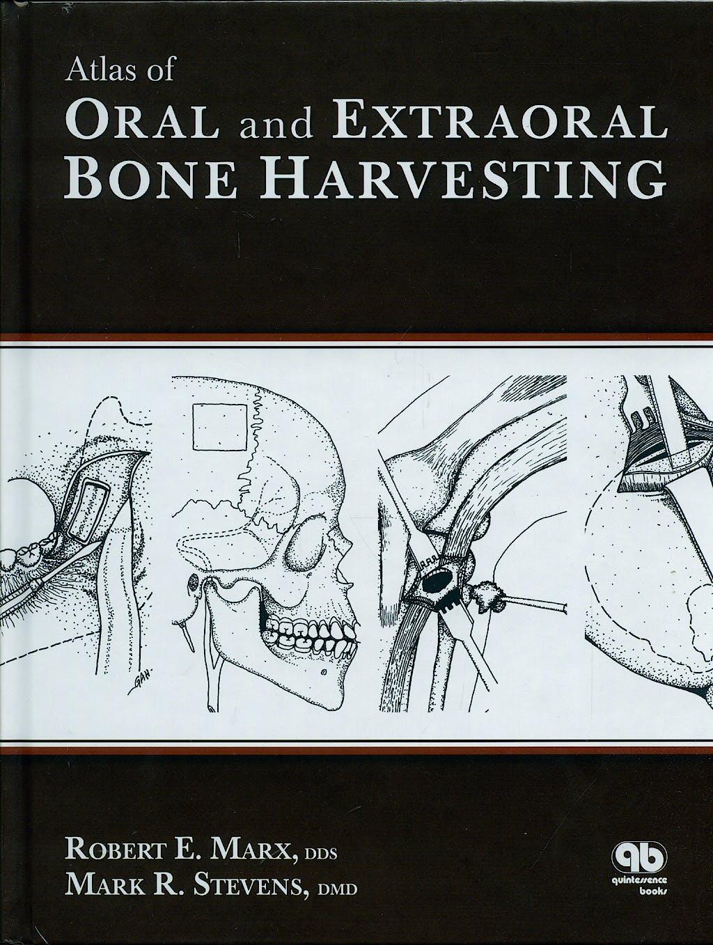 Portada del libro 9780867154825 Atlas of Oral and Extraoral Bone Harvesting