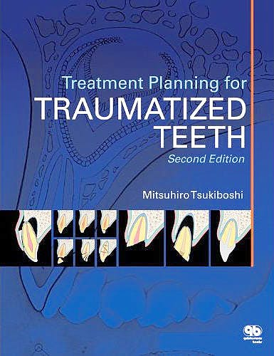Portada del libro 9780867155112 Treatment Planning for Traumatized Teeth