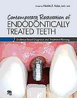 Portada del libro 9780867155716 Contemporary Restoration of Endodontically Treated Teeth. Evidence-Based Diagnosis and Treatment Planning