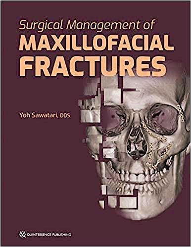 Portada del libro 9780867157949 Surgical Management of Maxillofacial Fractures