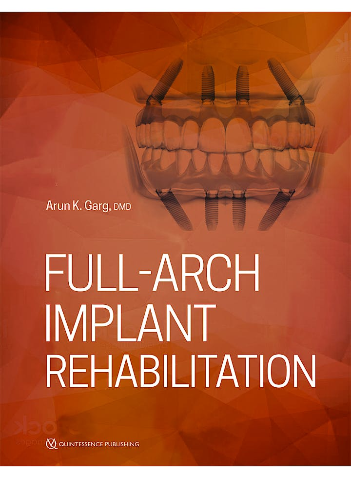 Portada del libro 9780867158090 Full-Arch Implant Rehabilitation