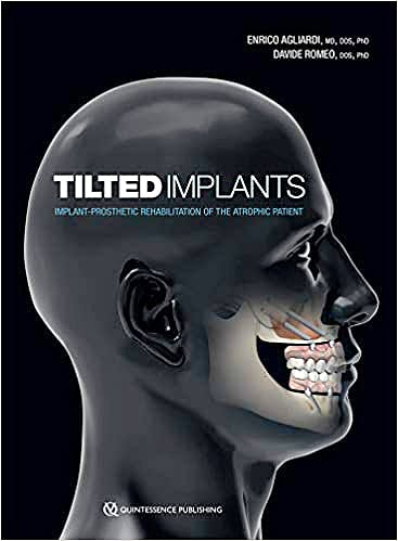 Portada del libro 9780867158182 Tilted Implants. Implant-Prosthetic Rehabilitation of the Atrophic Patient